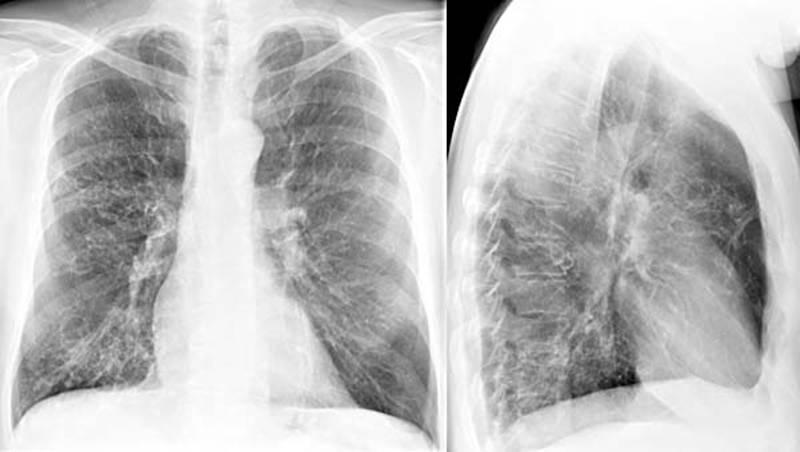 Вдыхание паров ЛКМ может привести к раковым заболеваниям